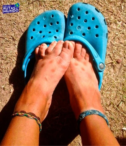 Trabajar en temporada de verano en Brasil también nos dejó marcas en la piel.
